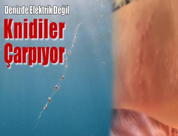 Denizde Elektrik Değil Knidiler Çarpıyor